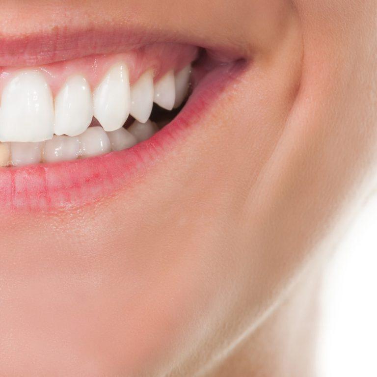 Vakker Banana Teeth Whitening Kit Vakker Banana